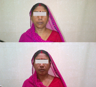 Case Of Facial Palsy. Before and after Treatment